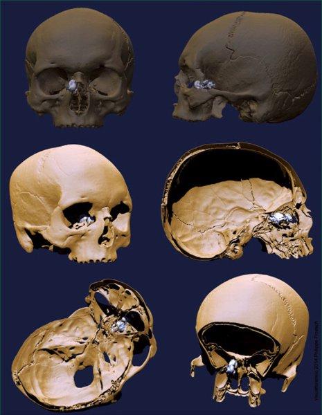 Rätselhafter Patient/ Sinus Osteoma